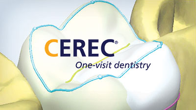 cerec dentists one visit crowns